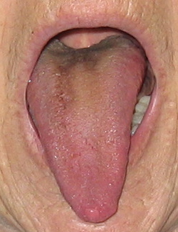 hævelse under tungen