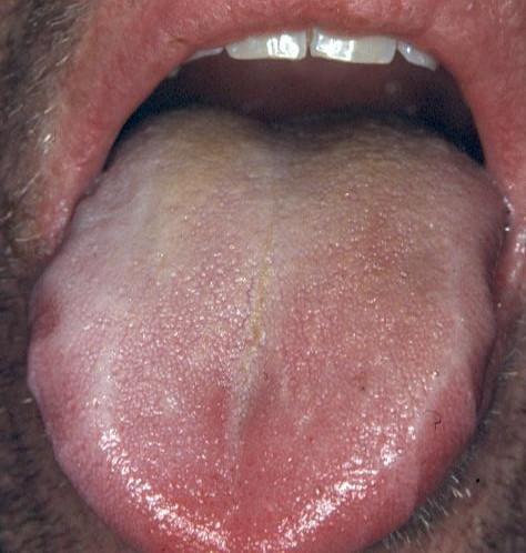 hvid belægning på tungen dårlig ånde